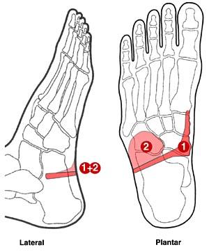 smerter under foden