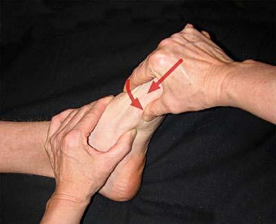 ondt på ydersiden af foden