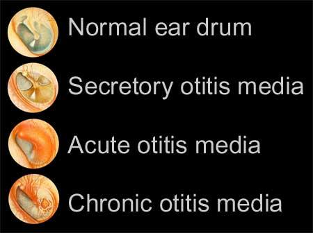 otitis media in adult